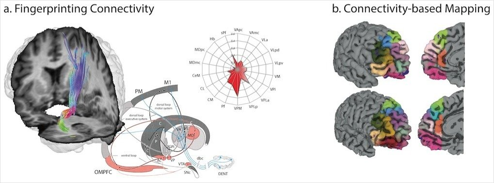 <strong>Fig. 1. Diffusion tractography-based fingerprinting is an emerging method enabling insight into individual connectional, and thus, functional parcellation of cortex and subcortical grey matter using non-invasive MR imaging in living human subjects.</strong><span> These methods may be applied (A) to quantify specific fibre connections </span><em>in-vivo</em><span> or (B) to derive connectivity-based parcellations of brain maps.</span>