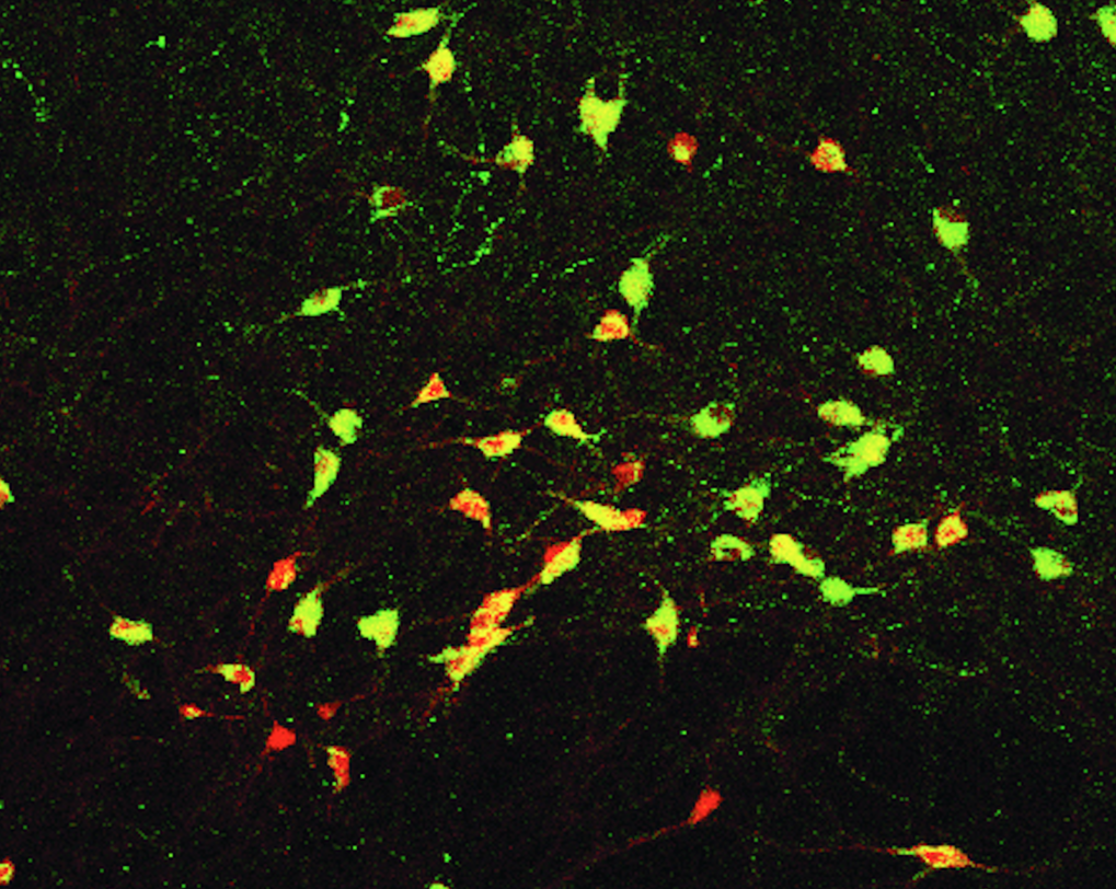 <p>MCH nerve cells control the energy balance in the body. The picture shows stained MCH nerve cells in the hypothalamus of mice. </p>